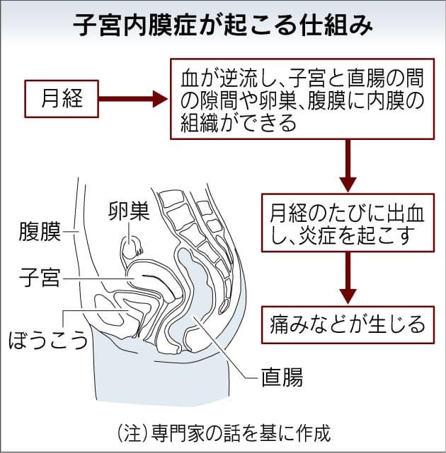 子宮 内 膜 症 原因 ストレス