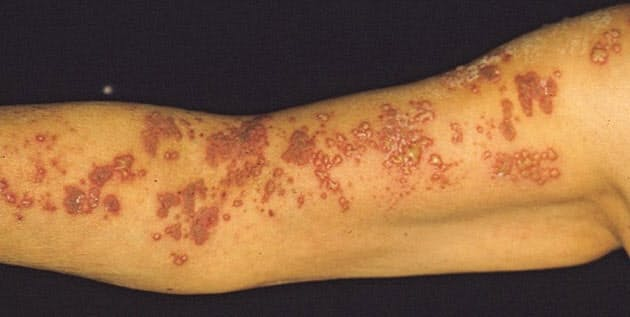 太もも 赤い 湿疹