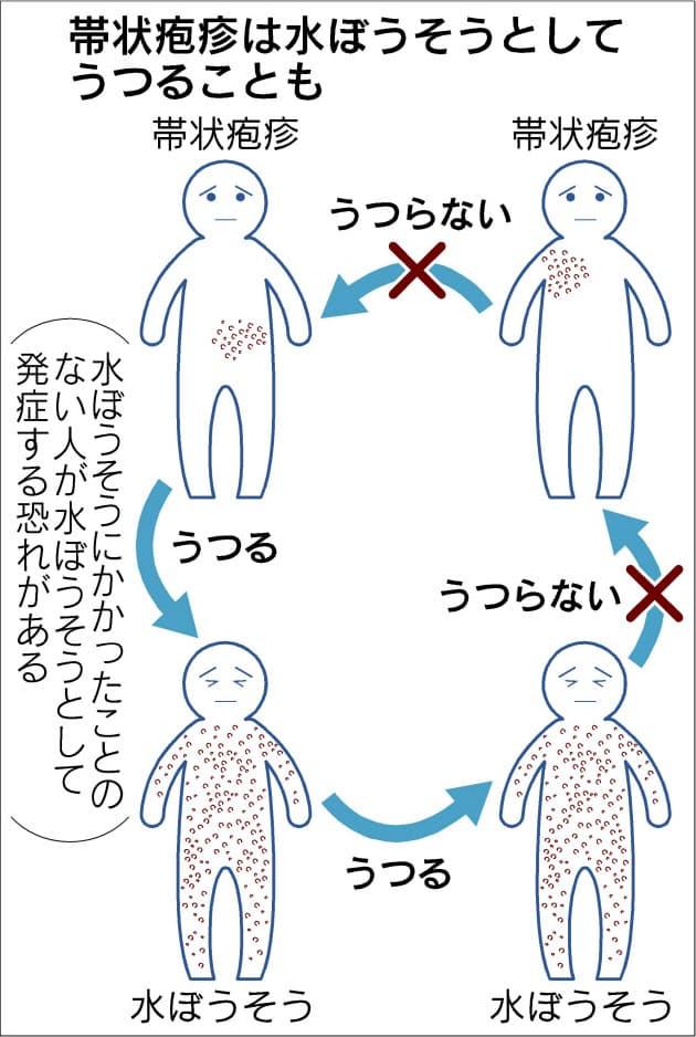 帯状 疱疹 うつる