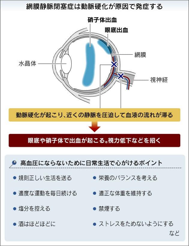 視力 低下 片目