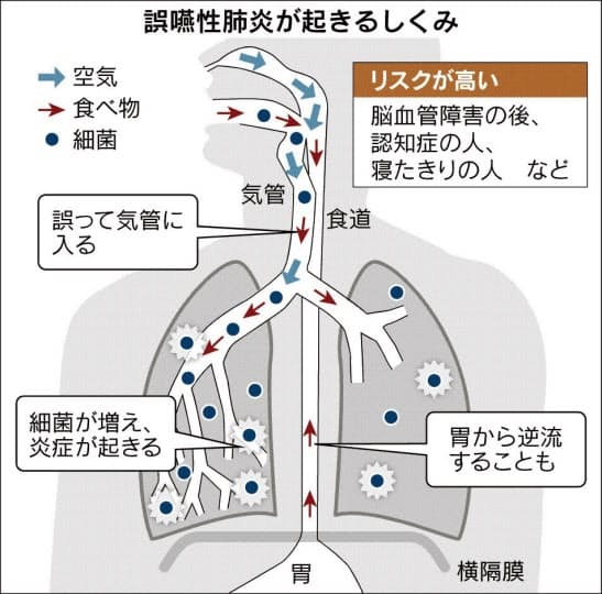 かも 気管 が 入っ た に 食べ物 ご飯粒が鼻の奥や気管に入る場合の取り方!喉にひっかかるとヤバい!?