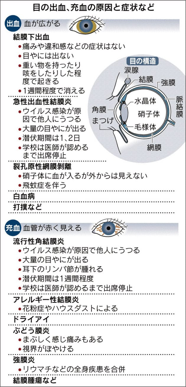 充血 真っ赤 の 目 なぜ?目の充血が治らない原因。治す方法は?もしや病気?|医師監修