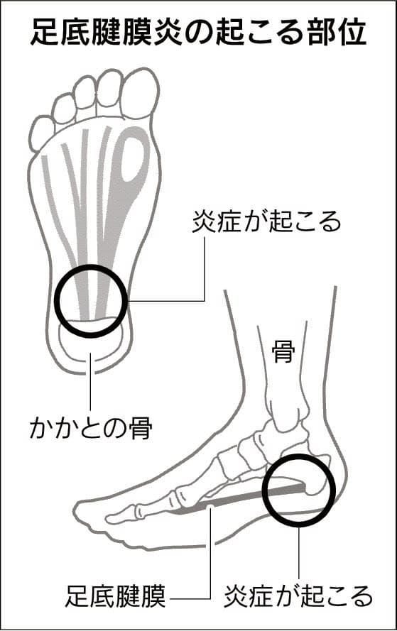 足 の 裏 痛い 原因