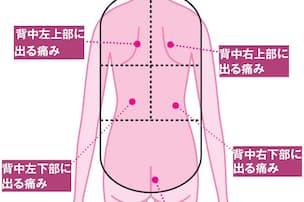 瘤 腹部 初期 症状 大動脈