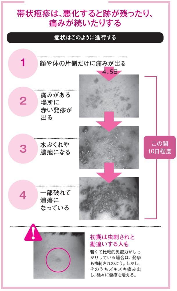 初期 画像 疱疹 帯状