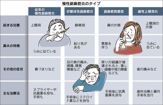 法 治療 副 炎 鼻腔