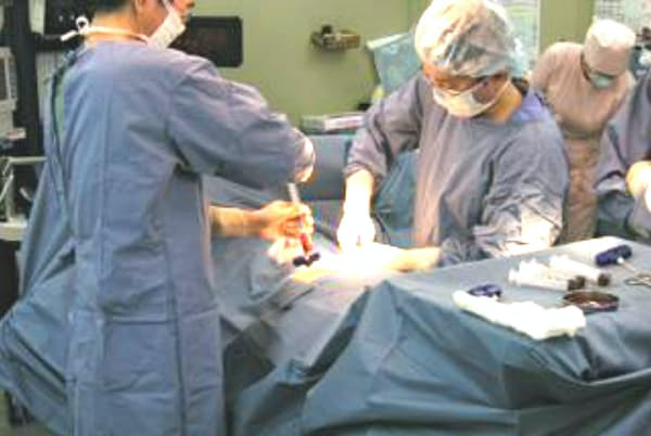 移植に向けてドナーから骨髄採取する(札幌市の札幌北楡病院)