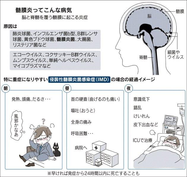 「髄膜炎」の画像検索結果