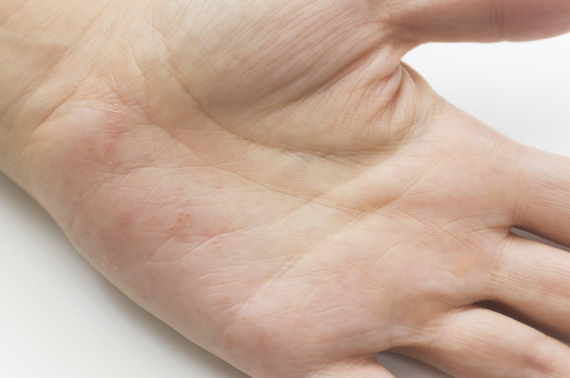 手足の湿疹長引いたら 金属アレルギーかも ヘルスup Nikkei Style