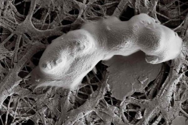 どう考えても生物など存在しそうにない場所で生き延びられる生物がいる。写真の微生物は、南極の氷の1キロ近く下で採取された。火星の生物もはるか昔に地表から撤退して、地中深くの氷の洞窟に潜っている可能性があるのではないだろうか。(Trista Vick-Majors and Pamela Santibanez, Priscu Research Group, Montana State University, Bozeman)