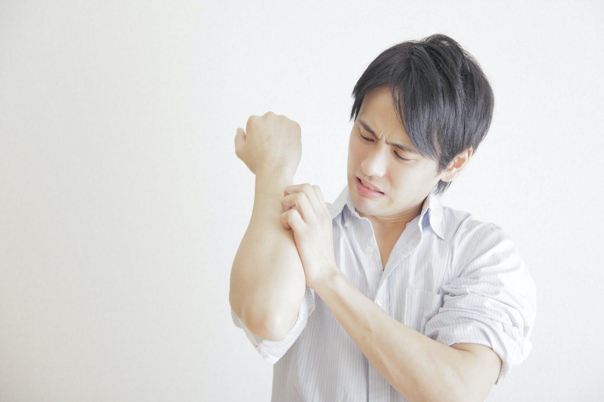 ヒスタミン 中毒 治療
