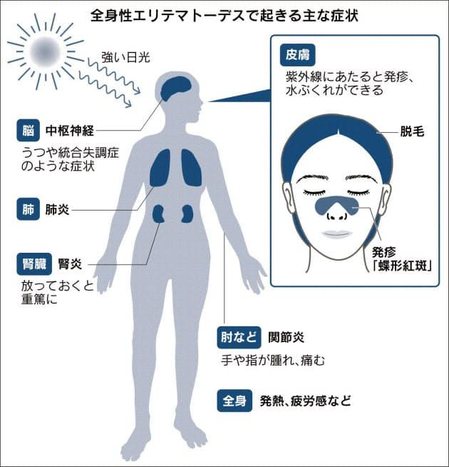 春の日焼け・発疹、実は難病? うつや腎炎の恐れも|ヘルスUP ...