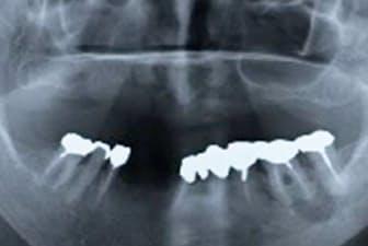 下顎の左側の骨が壊死している(76歳の女性患者、歯の間の部分が壊死したところ)