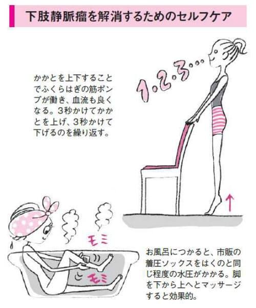 かかとの上げ下げが効果的 下肢静脈瘤のセルフケアwoman Smartnikkei