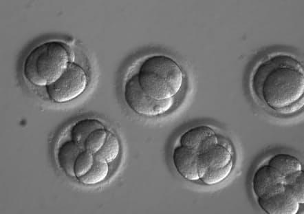 疾患を引き起こす変異が見られなかった受精卵。ゲノム編集酵素の注入から2日後のヒト受精卵。(PHOTOGRAPH COURTESY OHSU)