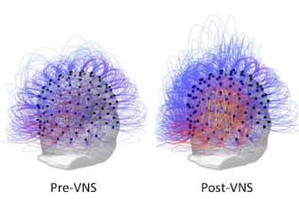 迷走神経刺激の前と後(Pre-VNSとPost-VNS)に、植物状態の患者の脳内でどのように情報の共有が増加したかを表すイラストレーション。(PHOTOGRAPH BY CORAZZOL ET AL)
