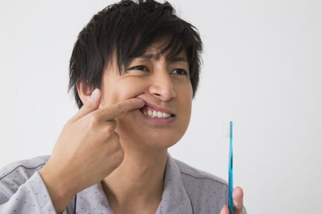 歯茎が赤くなり、歯磨き時に出血があれば歯周病の初期症状。歯科の受診を。写真はイメージ=PIXTA