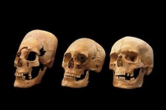 ドイツ南部にある1400年前の墓地で見つかった頭骨には、人為的に変形された跡があった。左側の頭骨は大きく変形され、中央はわずかに変形されたもの。専門家は、頭蓋変形がドイツよりも東方に住む民族の風習だったと考えている(PHOTOGRAPH BY STATE COLLECTION FOR ANTHROPOLOGY AND PALEOANATOMY MUNICH, GERMANY)