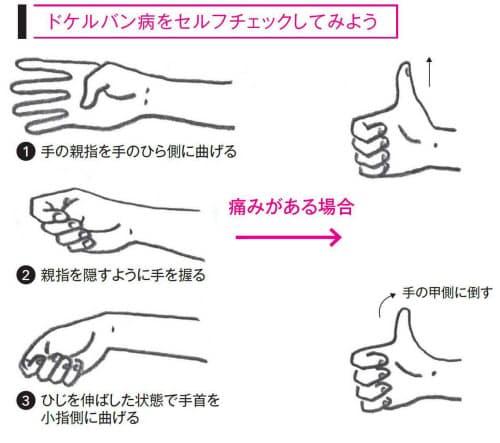 親指や手首がピリッ その痛みスマホのせいかも健康医療
