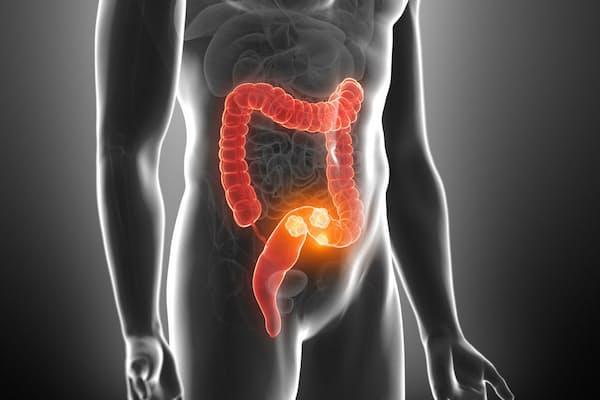 飲酒、喫煙、肥満、運動不足、感染症…。どれが確実に大腸がんのリスクを高めるでしょう。画像はイメージ=(c)Sebastian Kaulitzki-123RF