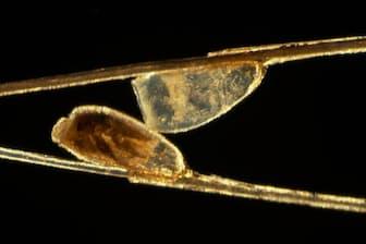 人毛についたアタマジラミの卵を顕微鏡で見たところ(PHOTOGRAPH BY DARLYNE A. MURAWSKI)