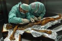 アイスマン(愛称エッツィ)の最後の食事となった動植物の正確な種を突き止めようと、彼の胃から内容物のサンプルを取る研究者たち(PHOTOGRAPH COURTESY SOUTH TYROL ARCHAEOLOGY MUSEUM, EURAC/M.SAMADELLI)