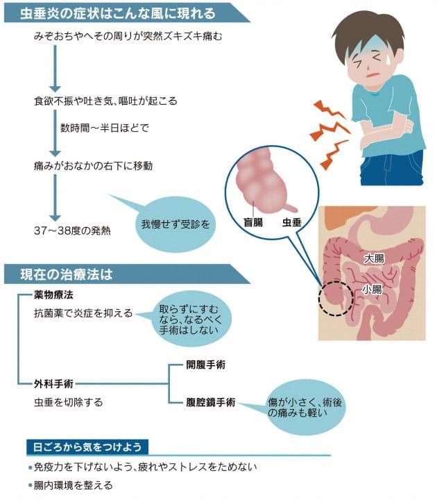 急なズキズキ、盲腸かも 早期発見なら手術いらず|ヘルスUP ...