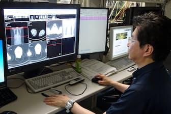 専門医が膨大な診断画像から情報を読み取る(荏原病院)