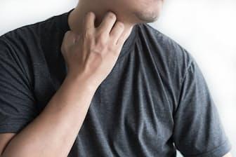 かゆみが軽減し、皮膚のバリア機能が回復することで「良い循環」が回り始める。写真はイメージ=(c) adiruch-123RF