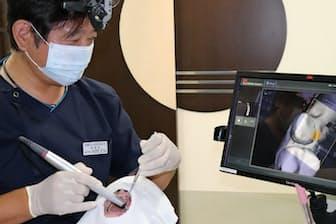 東上野歯科クリニックでは3Dスキャナーを使い、患者の口の中を撮影し治療を進める