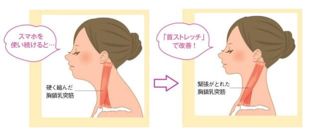 胸 鎖 乳 突筋 ほぐす