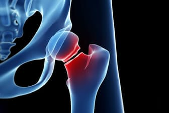 2017年、お酒で顔が赤くなる人は大腿骨骨折を起こしやすい、というニュースが流れた。これは本当だろうか。そしてその影響は? (c)Sebastian Kaulitzki-123RF