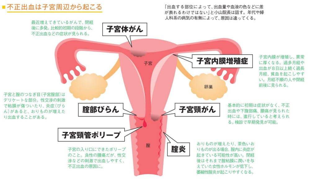妊娠 初期 出血 続く