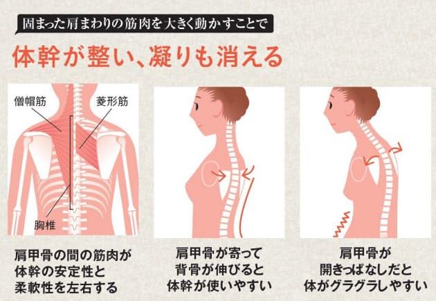 が 肩 痛い 付近 甲骨
