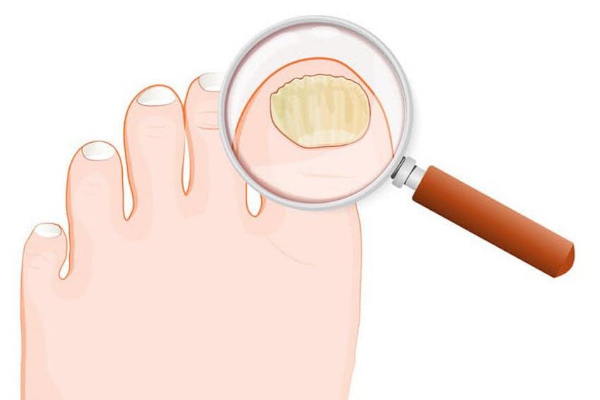 爪水虫の患者は国内に1000万人以上いると推計される。画像はイメージ=(c)designua-123RF