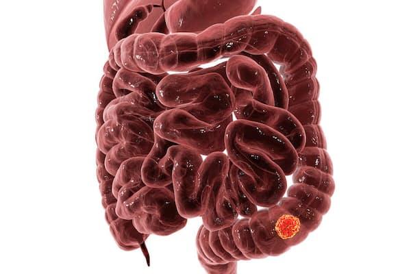 健康診断でもおなじみの便潜血検査ですが、これだけでは見つからない大腸がんもあるようです。写真はイメージ=(c)Kateryna Kon-123RF
