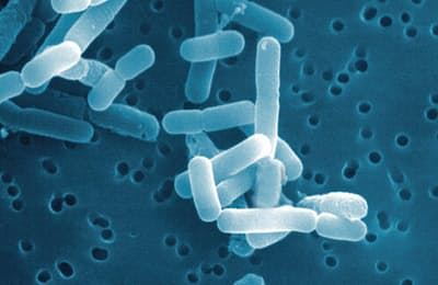 ロイテリ菌の電子顕微鏡写真=オハヨー乳業提供