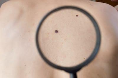 ほくろと思っていた斑点がだんだん大きくなってきたら、要注意。写真はイメージ=(C)Manuel Faba Ortega-123RF