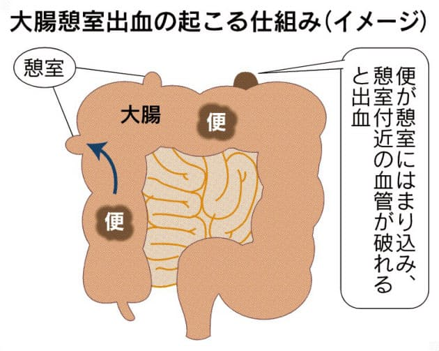 原因 炎 大腸 憩室