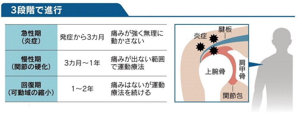 気温低下は要注意 いきなり痛む五十肩を運動で防ぐ|ヘルスUP ...