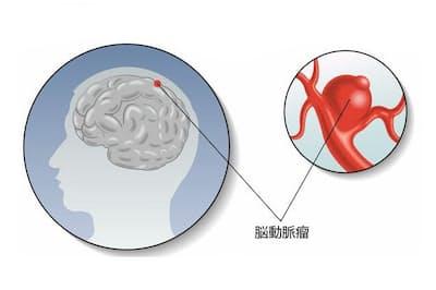 脳動脈瘤は、脳を覆う軟膜とくも膜の間にある「くも膜下腔」というスペースにできる。多くは脳動脈が枝分かれするところに発生する。原図(c)Roberto Biasini-123RF