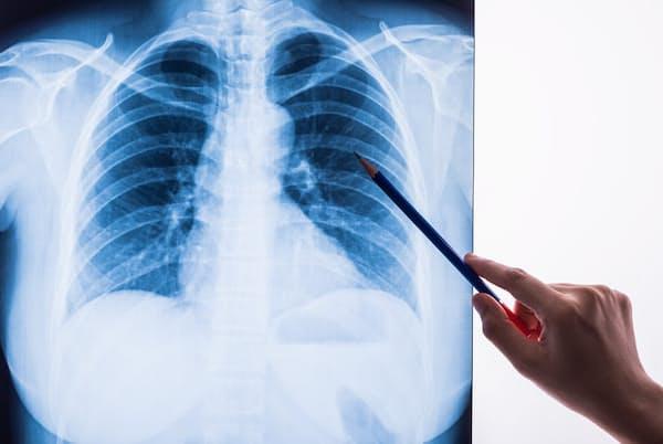 「肺炎」がどんな病気か理解している人は意外と少ない。写真はイメージ(c) WERAYUTH PIRIYAPORNPRAPA-123RF
