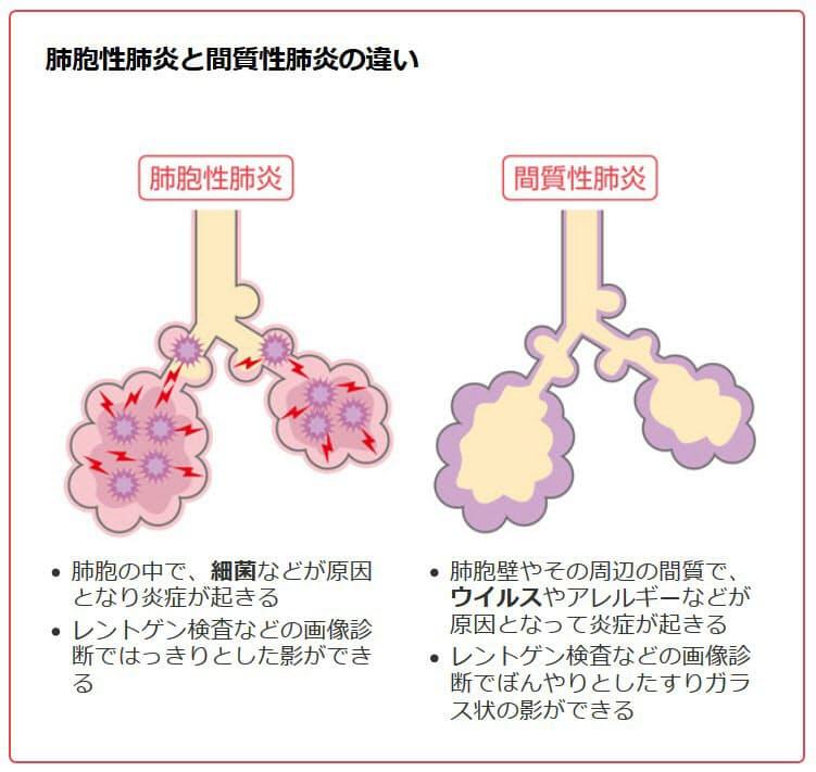 普通 の 肺炎 症状