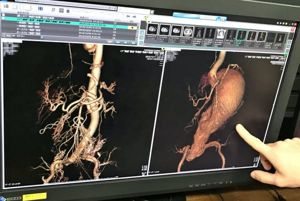 左が人工血管を入れた大動脈、右が手術前の大動脈瘤=一部画像処理しています