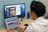 AGAヘアクリニック(東京都千代田区)での水島院長のオンライン診療の様子