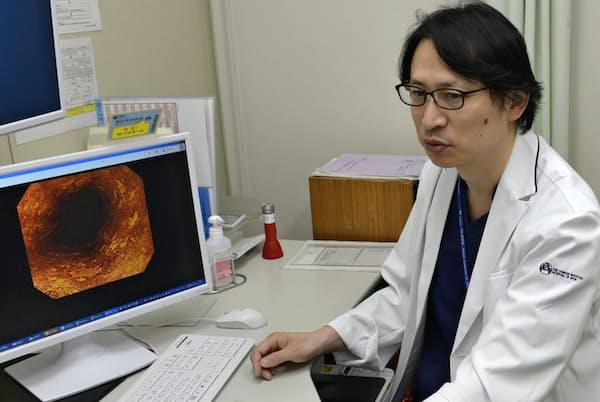 がん研有明病院の由雄副部長は「長い時間をかければ前がん病変が少しずつ減る可能性がある」と話す(東京都江東区)=同病院提供