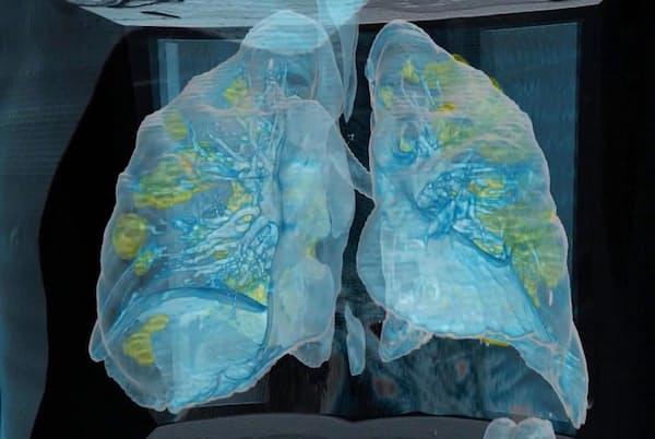 コロナウイルスは、米ジョージワシントン大学病院で死亡した59歳の男性の肺に広範囲の損傷(黄色の部分)をもたらした。画像はCTスキャンに基づく3Dモデル(PHOTOGRAPH COURTESY GEORGE WASHINGTON HOSPITAL AND SURGICAL THEATER)
