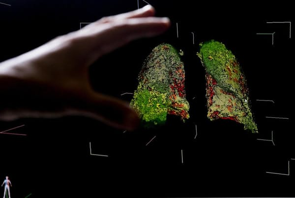 新型コロナウイルス感染症で損傷した肺の3次元CT画像。2020年5月22日にモスクワの国立病院で撮影されたもの(PHOTOGRAPH BY SEFA KARACAN, ANADOLU AGENCY VIA GETTY IMAGES)