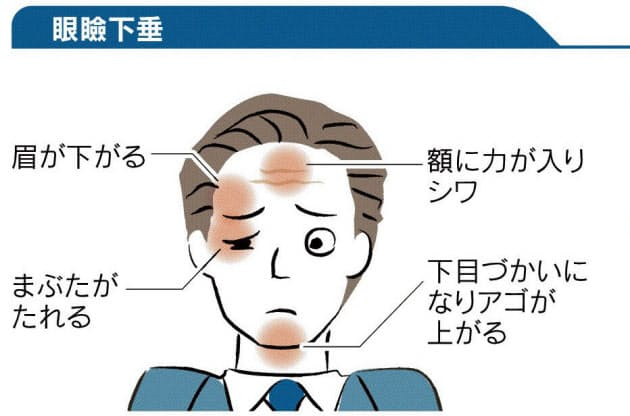 が 腫れる 目 コロナ