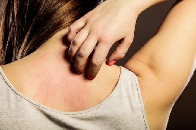 「じんましん」は、皮膚の一部が赤く盛り上がってかゆくなるが、時間がたつと消えて跡は残らない。(C) akz-123RF